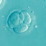 多嚢胞性卵巣症候群の人に必要なこと