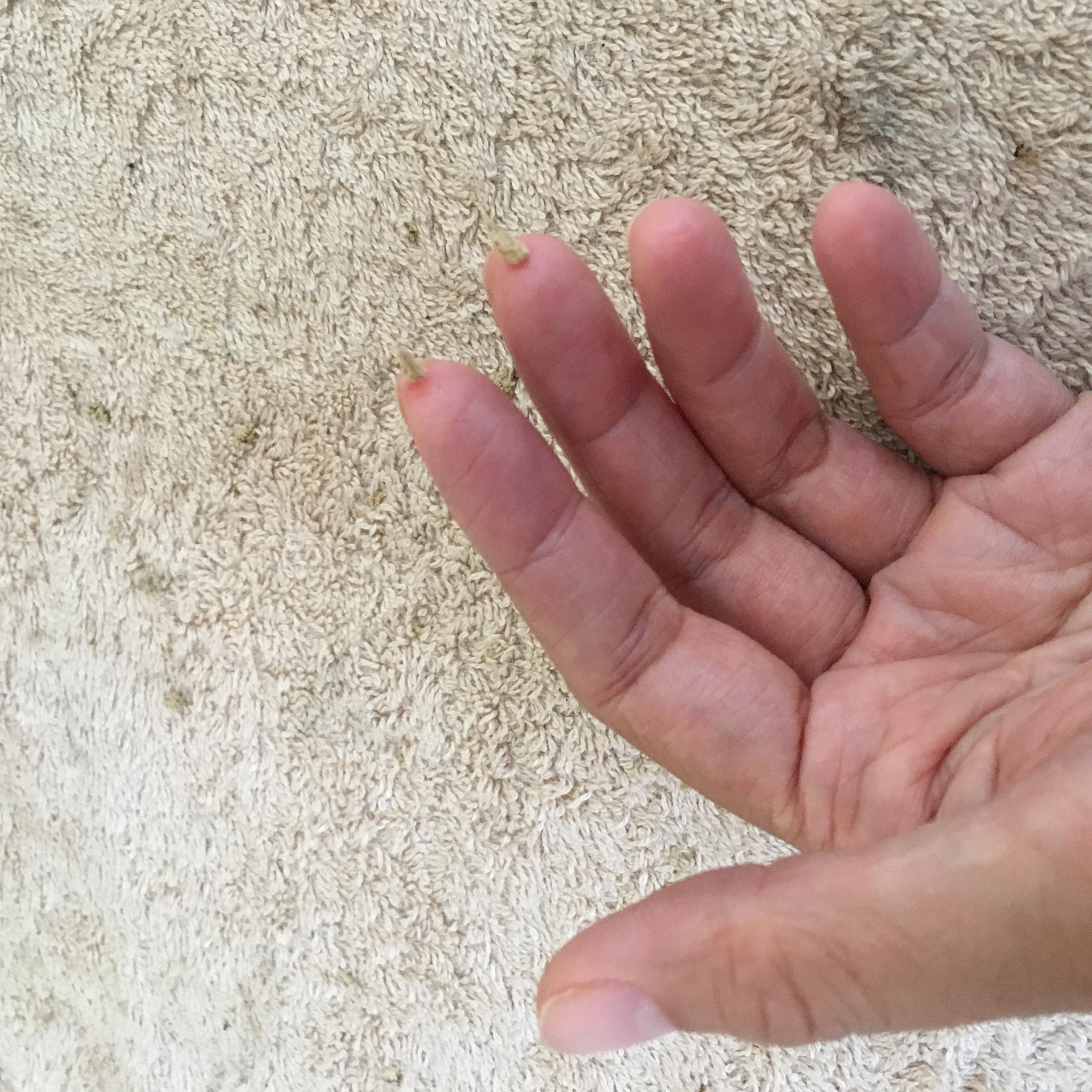 手足の痺れ改善のための指先のお灸