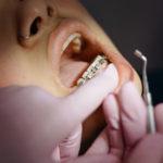 歯列矯正中のお子さんへの小児はり